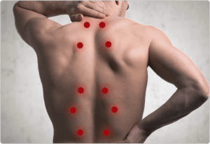 trigger point injections scottsdale az